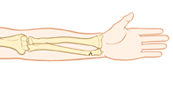 Lower arm bones showing greenstick fracture of wrist.